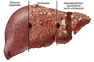أمراض الكبد ومضاعفاتها