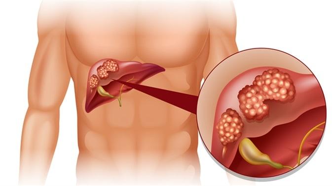 كيفية التعايش مع سرطان الكبد ؟