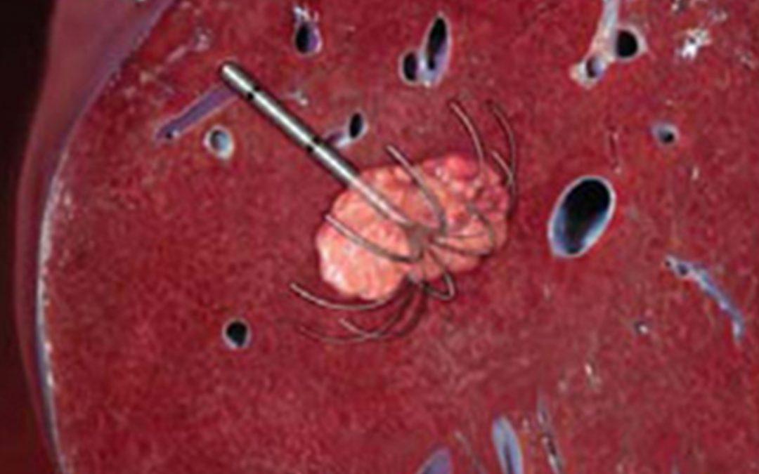 هل يوجد علاج لسرطان الكبد؟ وماهو ؟